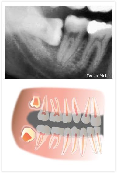 Especialidades: Cirugía, tercer molar incluido, muela del juicio