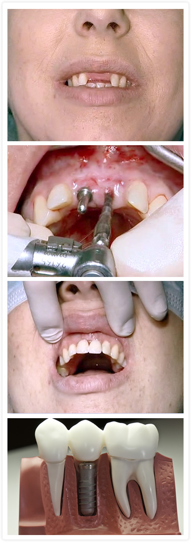 Especialidades: Implantología, implantes óseo integrados, implante dental, tratamiento de implante dentales