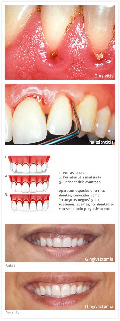 Especialidades: Periodoncia, tratamiento de la Gingivitis y Periodontitis