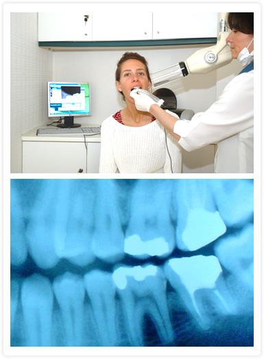 Especialidades: Radiología, Rayos X, Radiografía Periapical, Radiografías Inter. proximales o Bite wing, Radiografías digitales